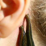 טיפול בעלוקה - איך זה מתבצע